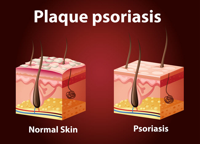 According to the American Academy of Dermatology (AAD), approximately 80% of those with psoriasis have what's called plaque psoriasis.