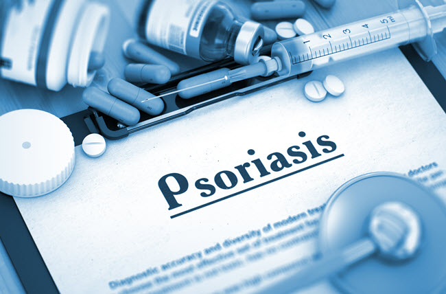 Perspective on Psoriasis