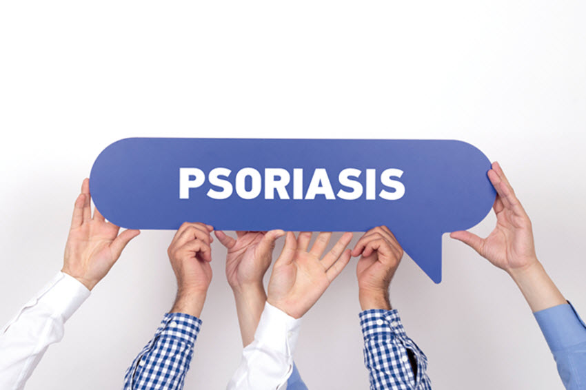 Taking Control of Psoriasis. Does Steam Help?
